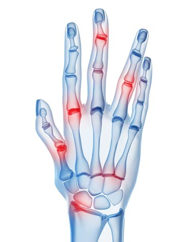 Treatment of Arthritis and Inflammation