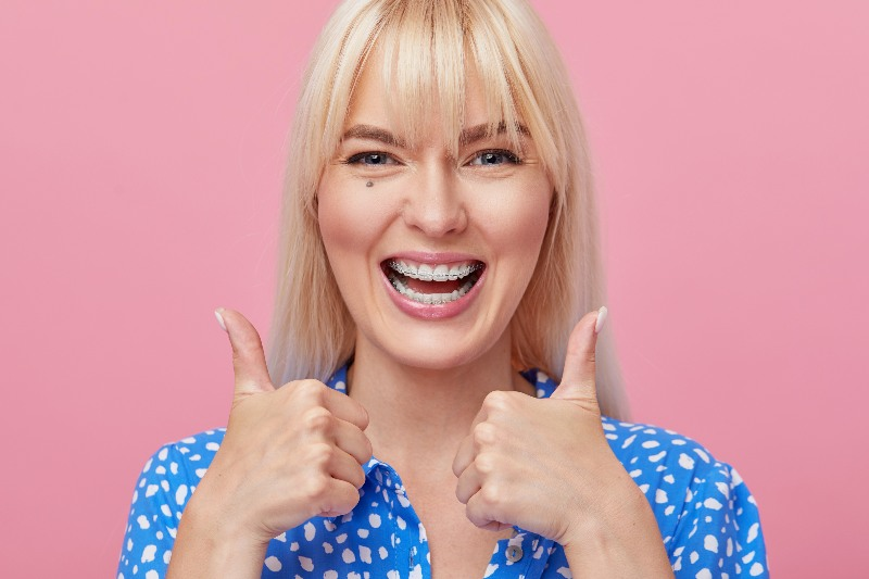 lady with ceramic braces smiling and giving thumbs up