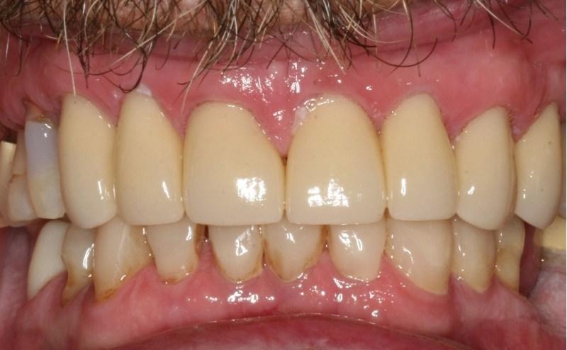 Restorative dentistry after