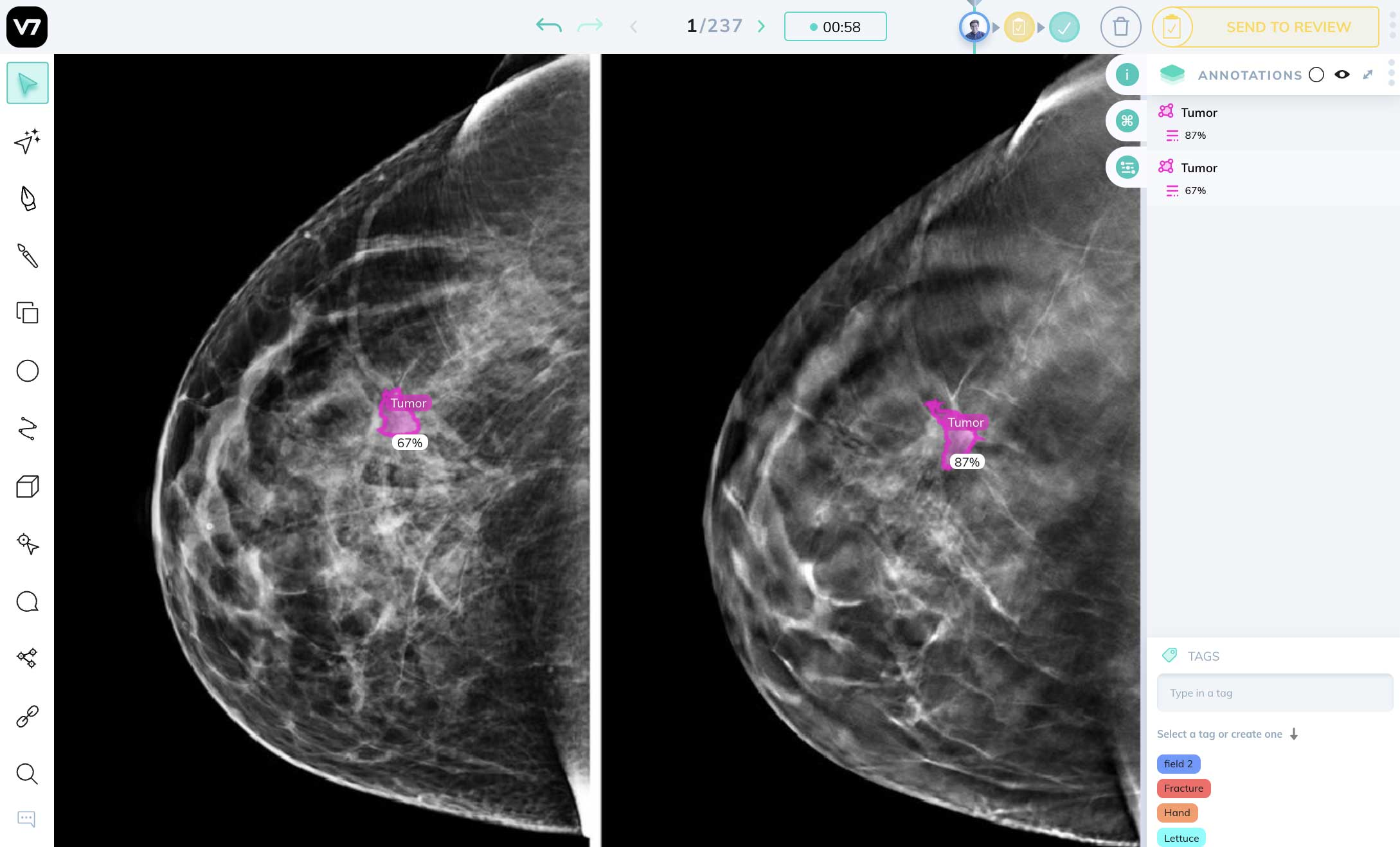 mammography detection AI in DICOM image annotation