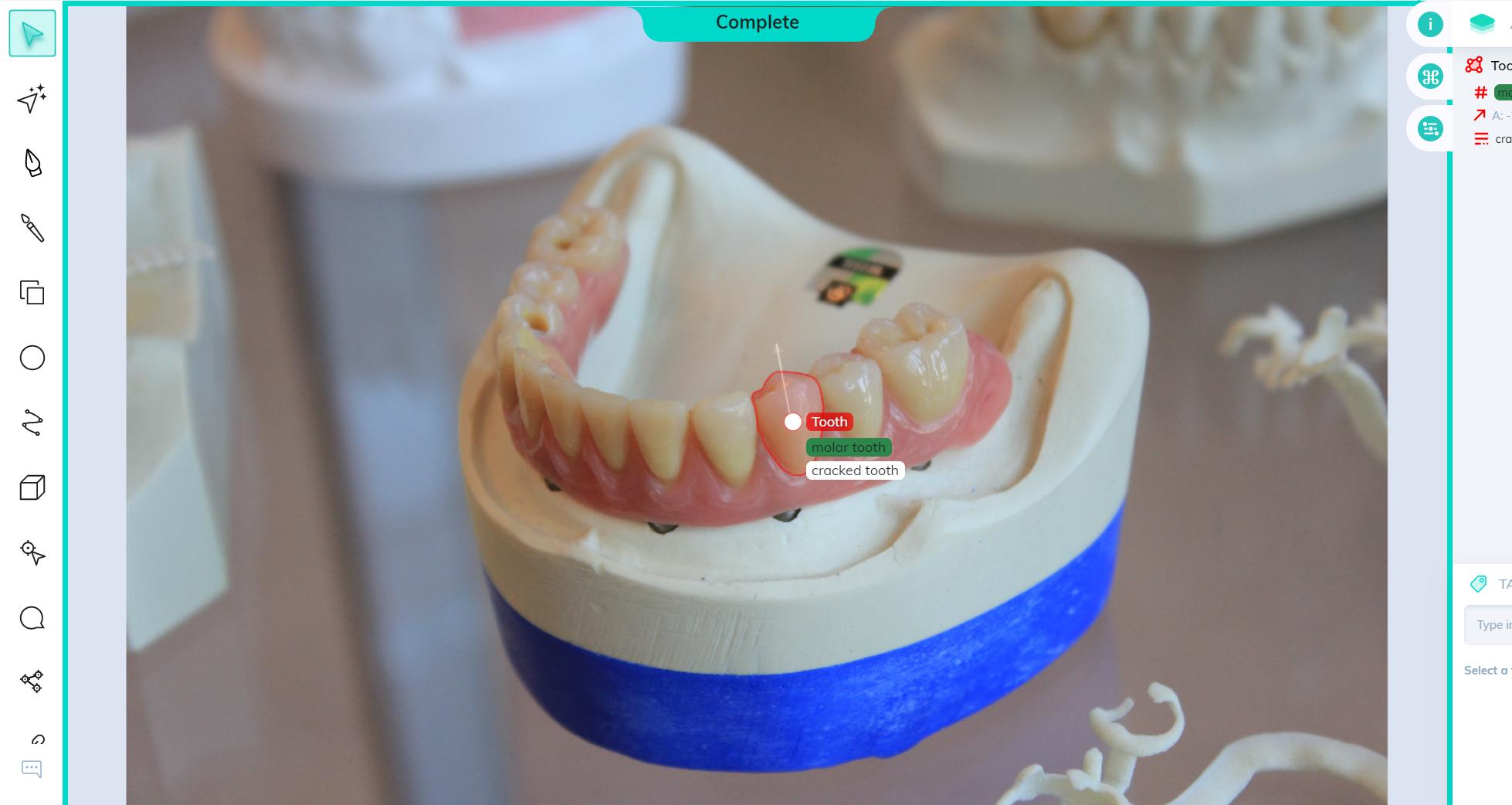 Dental image annotation