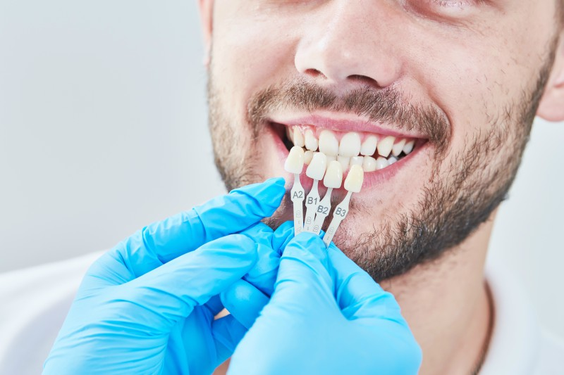 man getting his teeth examined for their whiteness