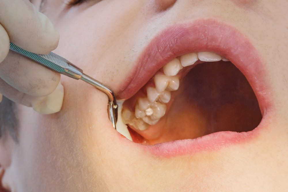 close up image of a dental filling