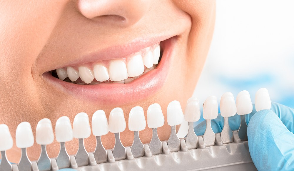person looking at a tooth whitening chart