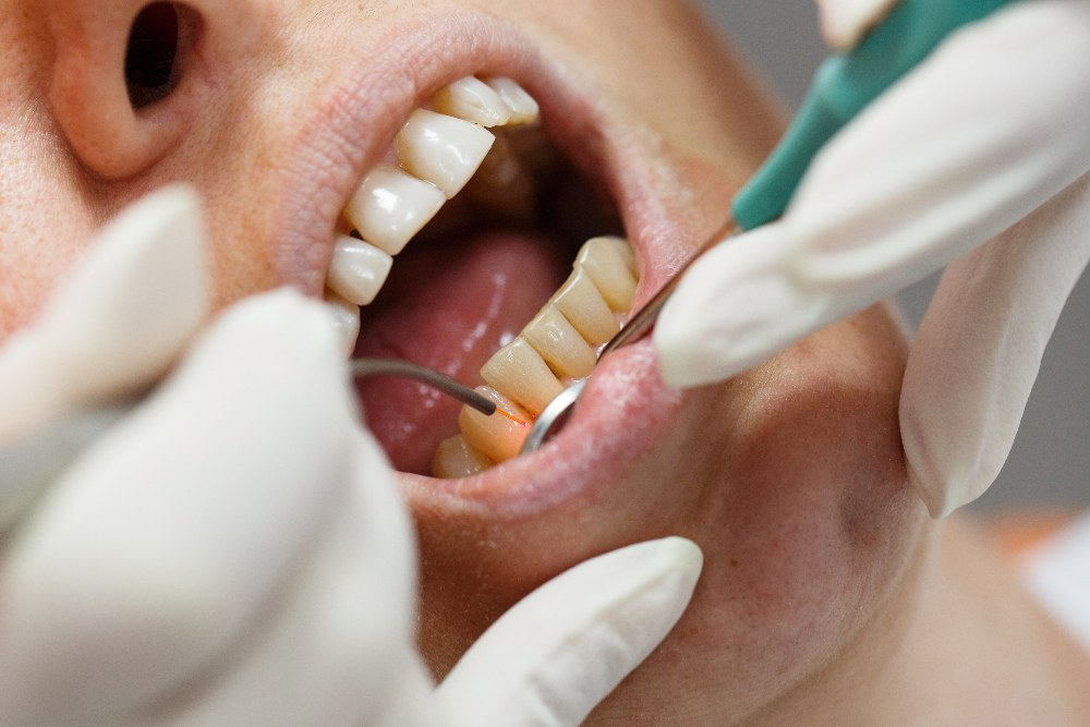 patient having their gum-line lasered by a dentist