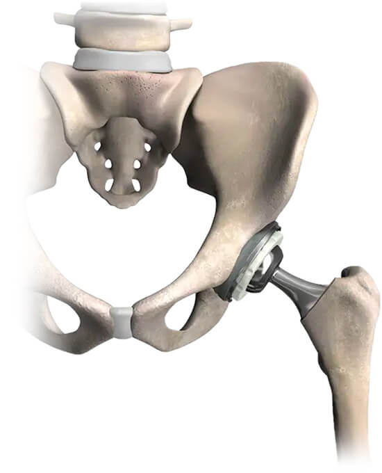 Total Hip Replacement Mako Robotic-Arm Assisted Joint Surgery for Hip Replacement Steward Health Care Utah Orthopedics Jordan Valley Medical Center