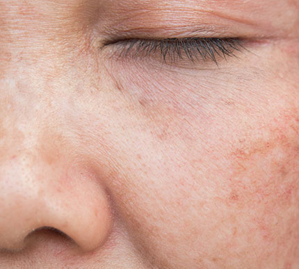 woman with sunspots on her face