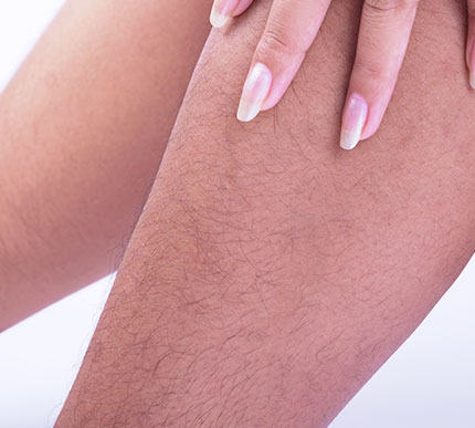 A woman with hairy legs