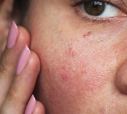 A woman with redness on her cheeks
