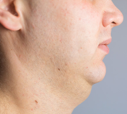 Man with neck-chin