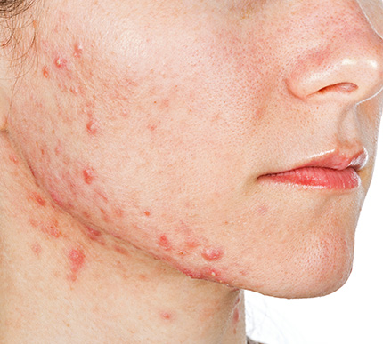 a woman with acne-prone skin