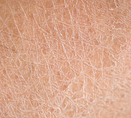 a close-up of dry skin