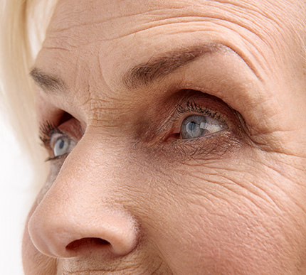 older woman with thinning facial skin
