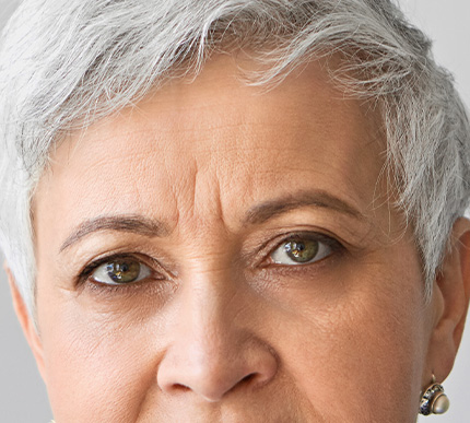 woman with vertical lines between her eyebrows