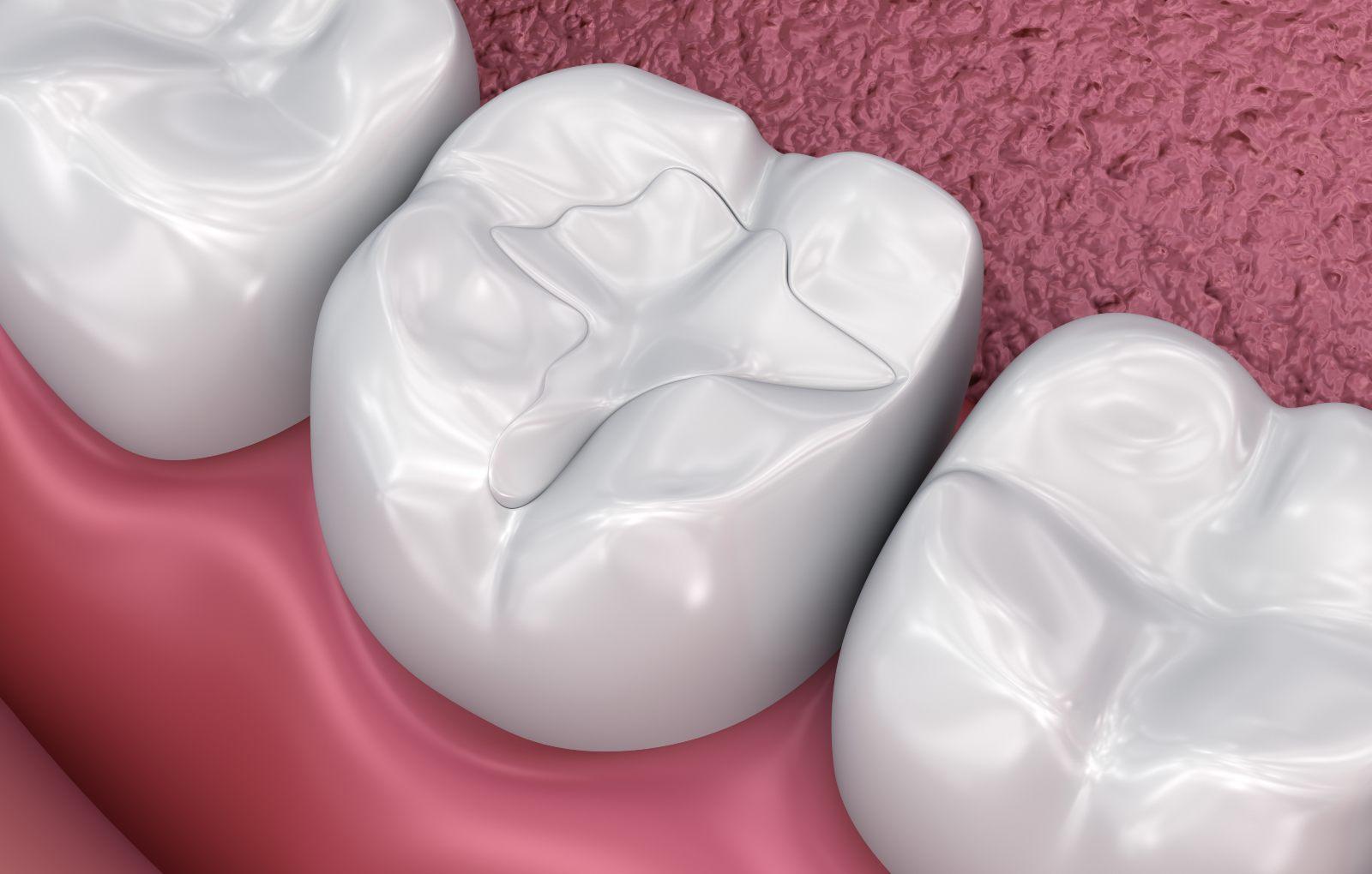 close up of dental filling