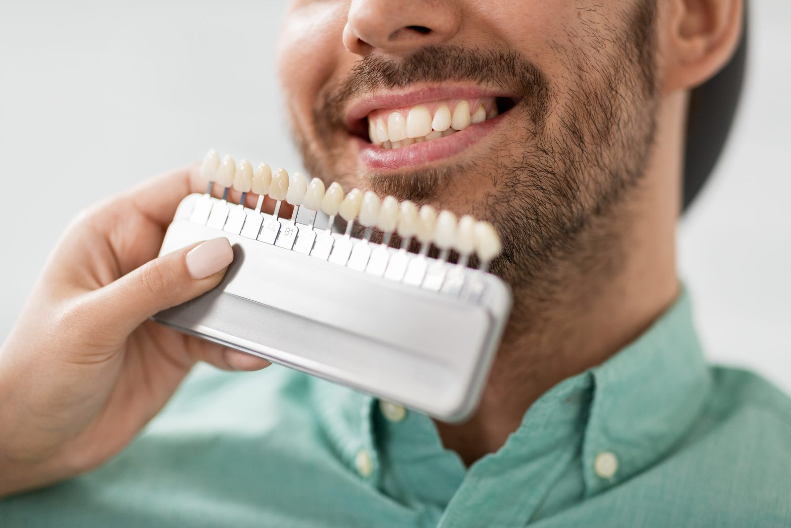 someone holding up a teeth whitening kit to show what level white the patient's tooth currently is and what it will be