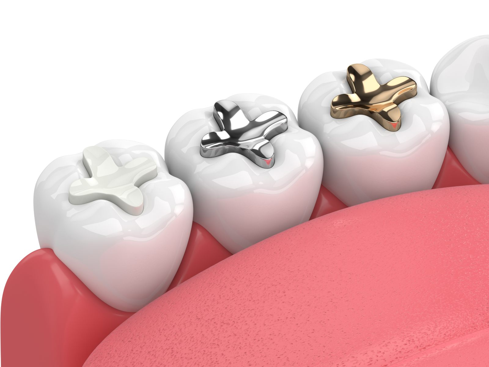 different colored and material dental fillings in a mouth