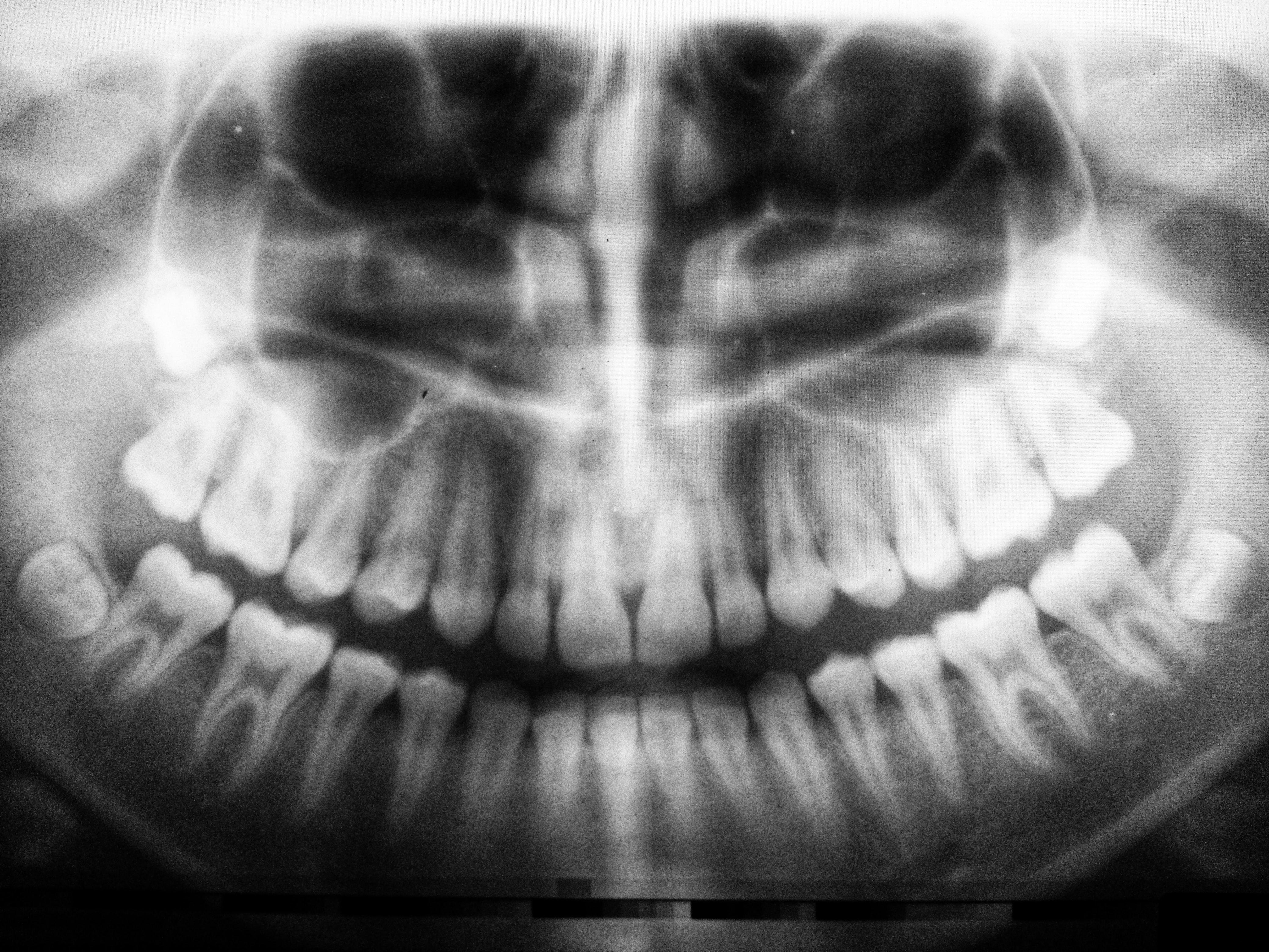 PAN x-ray