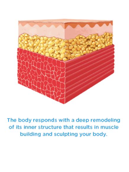 aesthetic fat reduction body treatment dublin oh