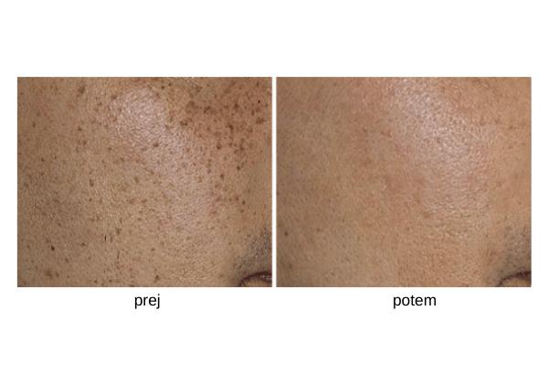lasersko odstranjevanje pigmentacije