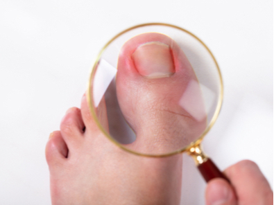 Ingrown toenails - causes and management