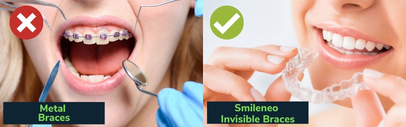 Straighten Teeth With Invisible Braces
