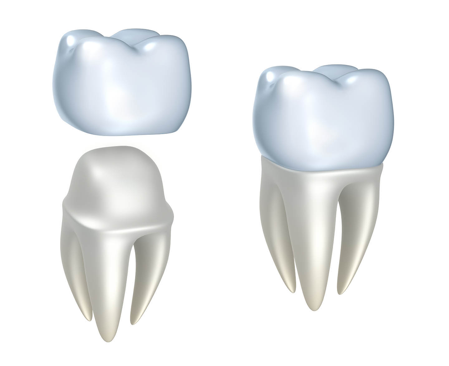 animated image of dental crown