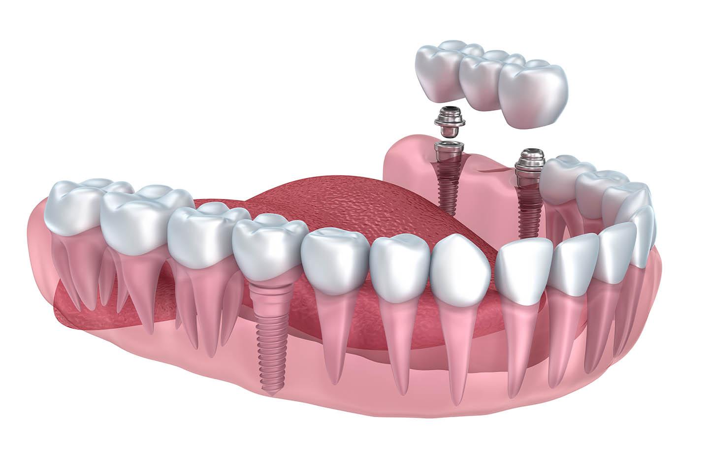 animation of dental bridge