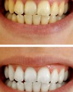 Bleaching Before & After