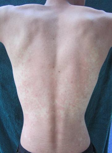 Wine Allergy Rash on Back