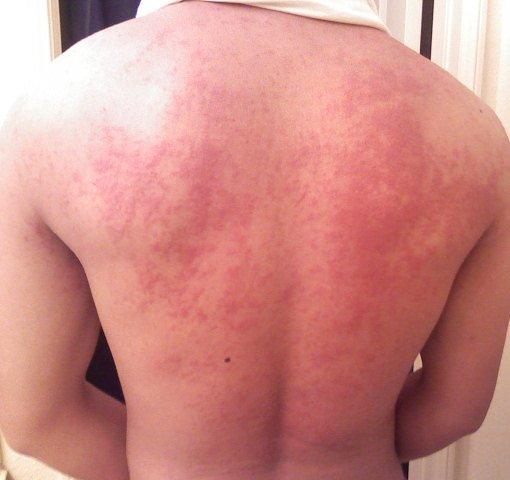 Hives on back