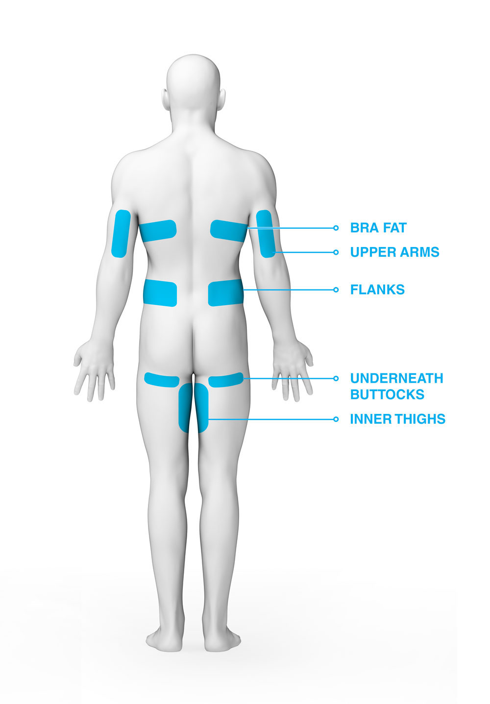 CoolSculpting Body Area Back