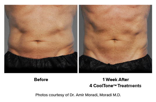 before and after CoolTone man ABS
