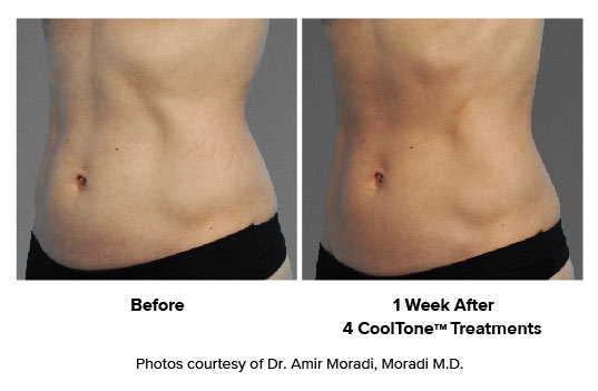 before and after CoolTone women ABS