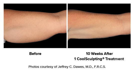 before and after CoolSculpting women arms