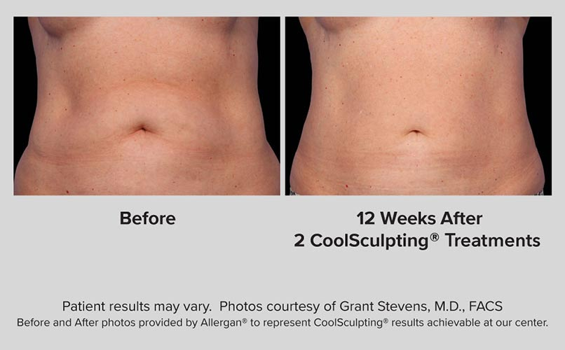 before and after CoolSculpting women ABS