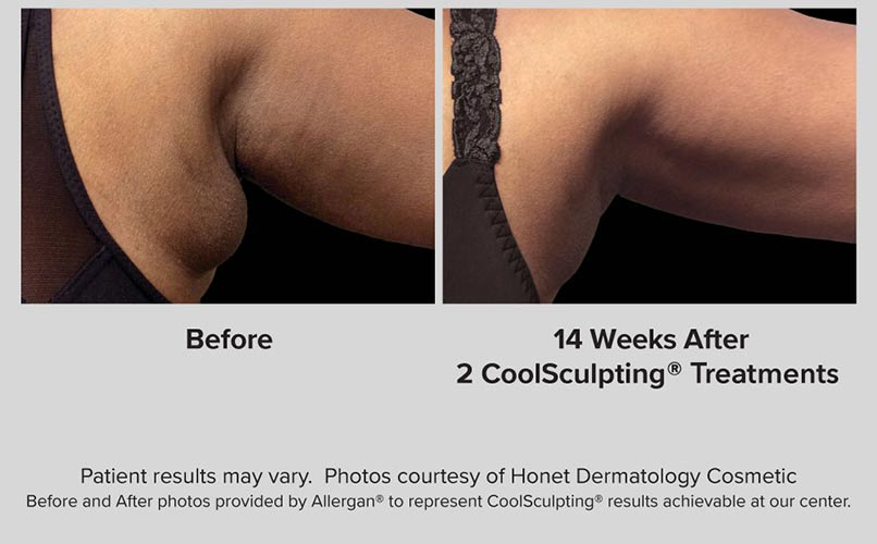 before and after CoolSculpting women Armspit
