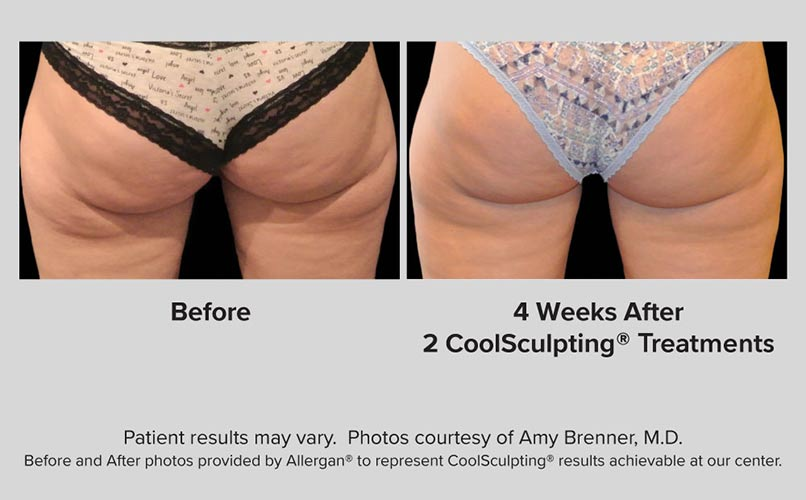 before and after CoolSculpting women Buttocks