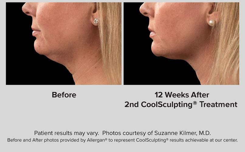 before and after CoolSculpting women Chin