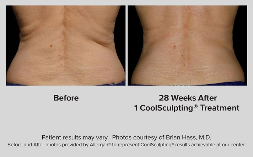 before and after CoolSculpting women Flanks