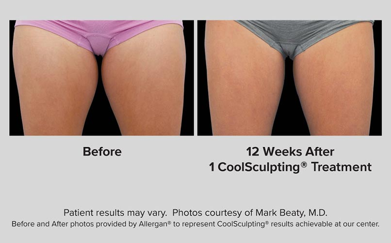 before and after CoolSculpting women Thighs