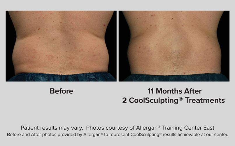 before and after CoolSculpting men Flanks