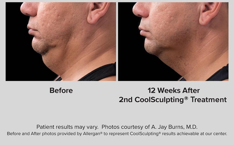 before and after CoolSculpting men Chin