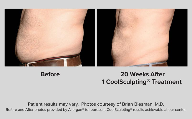 before and after CoolSculpting men ABS