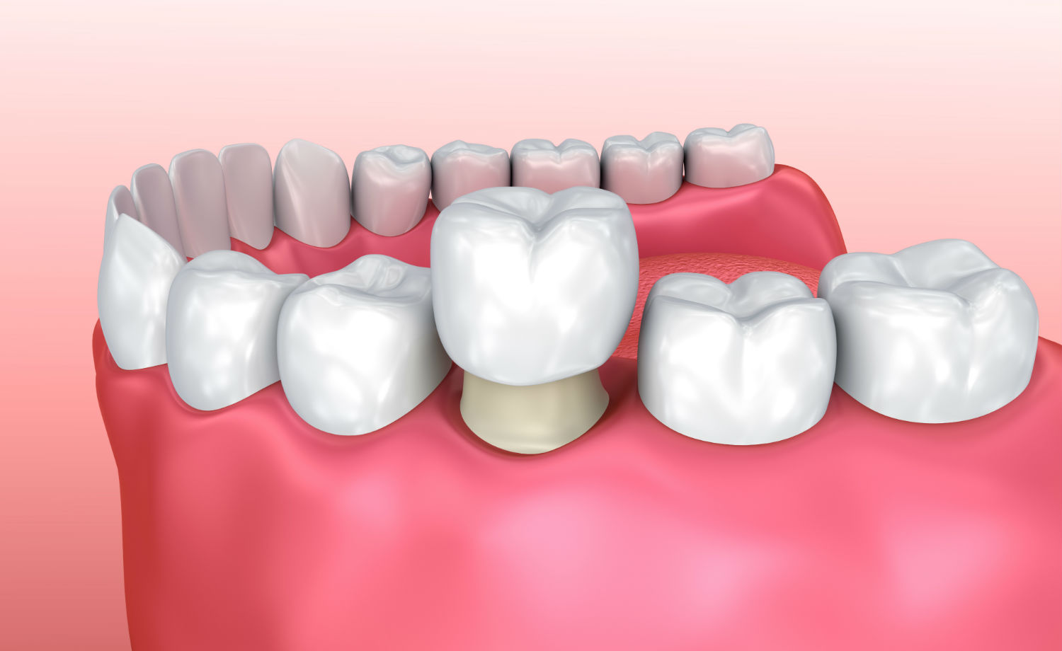 animated image of dental crowns