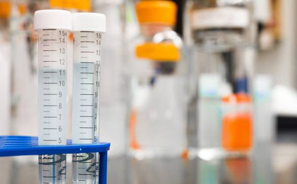 Here is a look at why a doctor may order a 24 hour urine analysis test, what to expect, and how BASS Advanced Urgent Care can help.