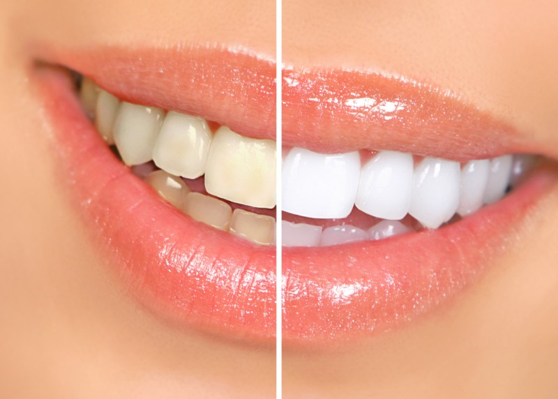 Teeth Whitening Before & Afters