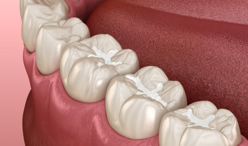 a model of dental sealants