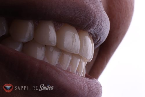 close up of mouth with beautiful teeth