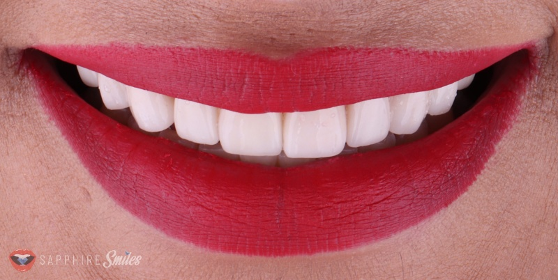 close up of mouth with beautiful red lips